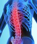 治疗强直性脊椎炎用药大全