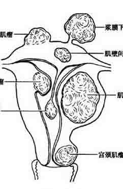 子宫肌瘤是什么病 有什么药物治疗