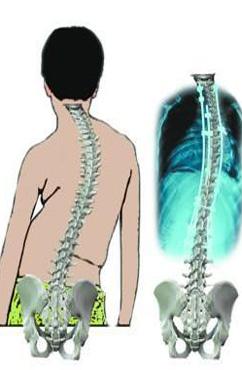 诱发强直性脊柱炎的原因有哪些呢