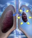 气胸怎么治疗 方法是什么