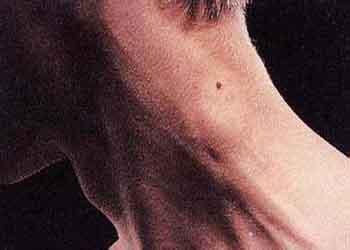 淋巴结肿大症状是什么 为什么会肿大的