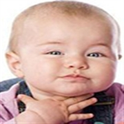 婴儿支气管炎该怎么办 如何护理