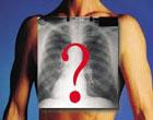 男性肺癌的早期症状