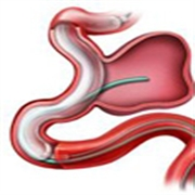 什么是主動脈瘤 臨床上有什么表現