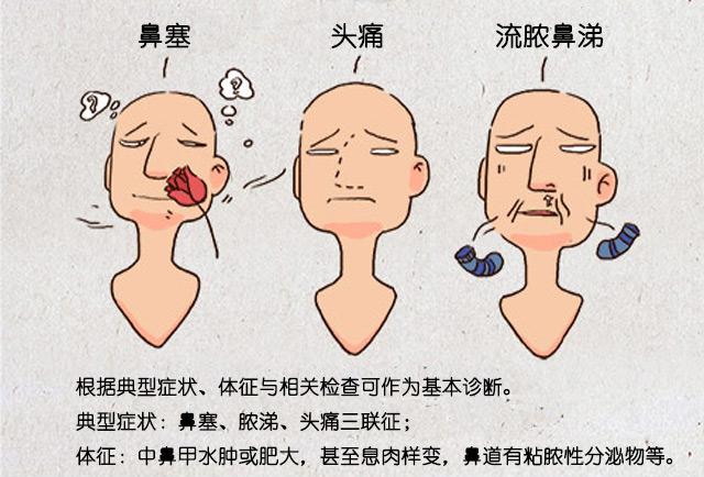 偏头痛的症状及治疗_治疗鼻窦炎第一步:全方位认识鼻窦炎-康爱多网上药店