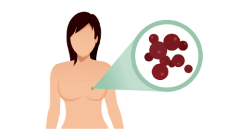 如何治疗三阴乳腺癌 三阴乳腺癌生存率是多少