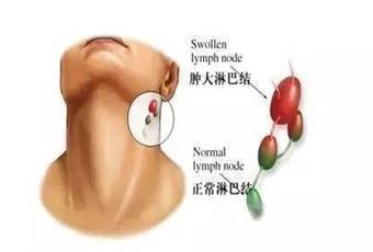 淋巴结肿大症状是怎样的