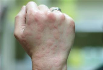 风疹病毒是什么 有什么危害