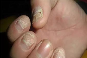 得了灰指甲会有什么症状