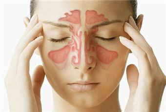慢性鼻窦炎症状有哪些