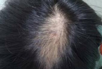 头癣的症状是什么