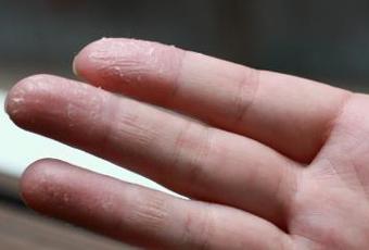 手足癣可以治愈吗