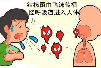 怎么预防肺结核呢