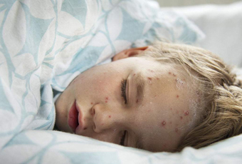 孩子起水痘该怎么办呢
