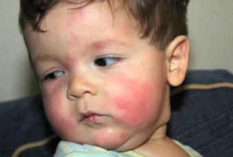 孩子皮肤过敏怎么办