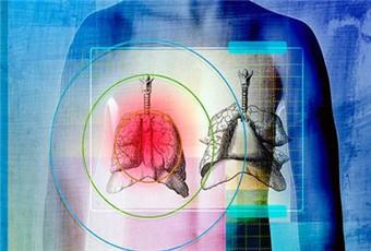 胸膜炎最佳治疗方法是什么