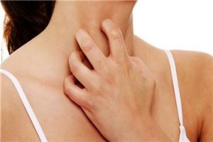皮炎和湿疹有什么区别呢