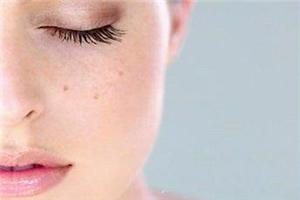 脸上长黄褐斑的原因是什么 失眠会有黄褐斑吗