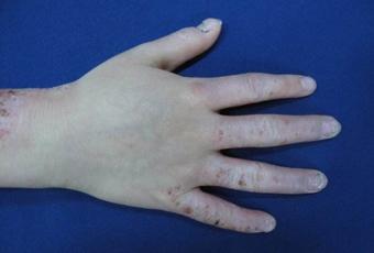 异位性皮炎用什么治疗