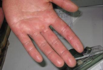 带状疱疹的初期症状有什么