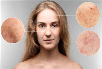 皮肤有粉刺该怎么办