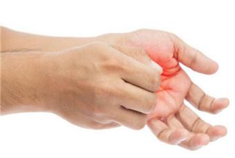 激素皮炎要怎么治疗呢