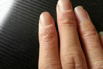 手足癣能治愈吗