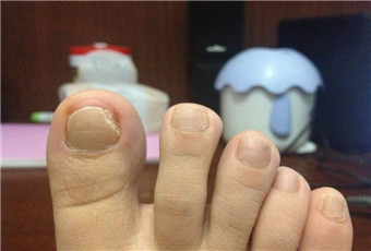 孕妇得了灰指甲怎么办
