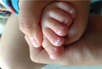 小孩得了灰指甲怎么办