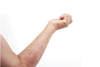 湿疹原因有哪些