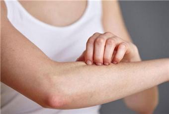 春天皮肤过敏怎么缓解呢