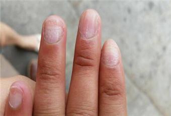 灰指甲怎么引起的