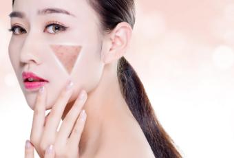 脸部皮肤过敏怎么办