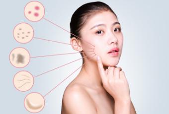 冷空气皮肤过敏有什么症状