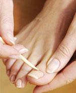 灰指甲的早期症状有哪些 如何预防