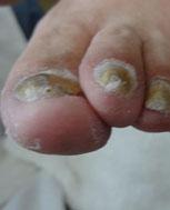 甲沟炎症状是怎样的 会不会脱指甲