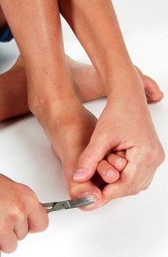 甲沟炎专用修脚剪刀有用吗 怎么保健