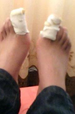 甲沟炎拔指甲后护理怎么做 怎么治疗