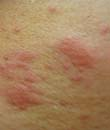 皮炎症状有哪些 不同皮炎症状一样吗