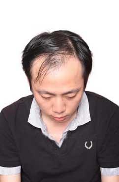 长期脱发是什么原因 可以怎么治疗