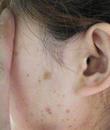 扁平疣有什么症状 能预防吗