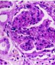 什么是红斑狼疮性肾炎 药物能治疗么