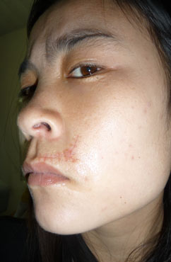 脸上疤痕有什么症状 有影响吗