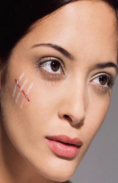 脸部疤痕修复有产品吗 好用吗