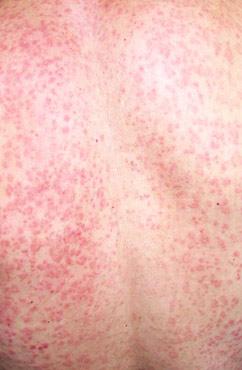 初期玫瑰糠疹有什么症状 具体表现是怎样的