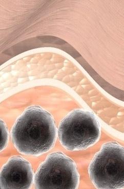 玫瑰糠疹病因是什么 怎么治疗