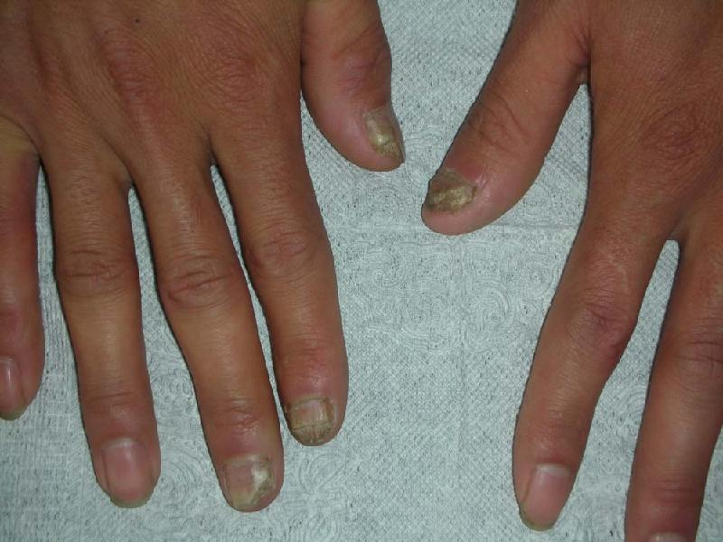 亮甲能治好灰指甲吗