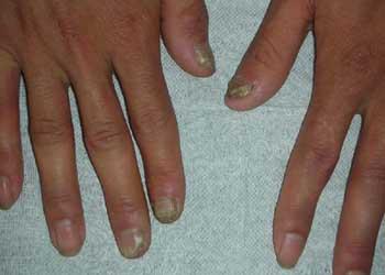 灰指甲是怎么回事