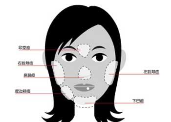 鼻头长痘的原因