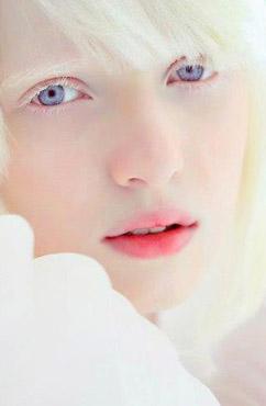 白化病症状有哪些呢